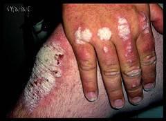 La psoriasis los síntomas iniciales de la foto