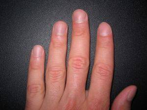 Tóxico atopichesky la dermatitis